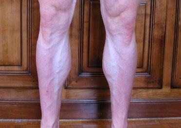 Musculation des triceps suraux/mollets (jambes)